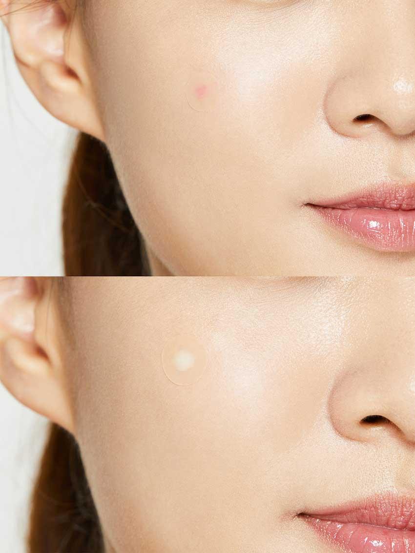 Cosrx-Acne-Pimple-Master-Patch-24-Patche